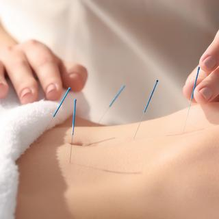 Mobile Physiotherapy in Essex Accupuncture